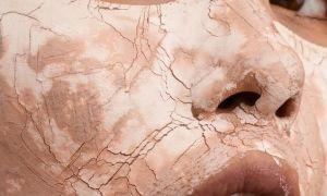 5 компонентов косметики, которые стоит избегать обладателям сухой кожи.